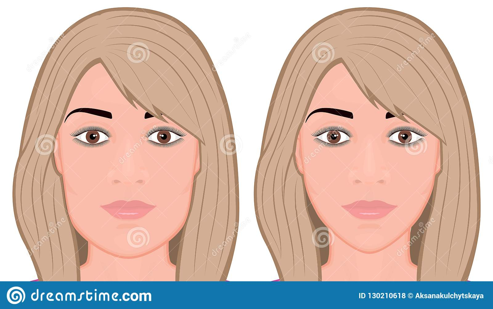 Twarzy front_Jaw operacji redukcyjna twarz