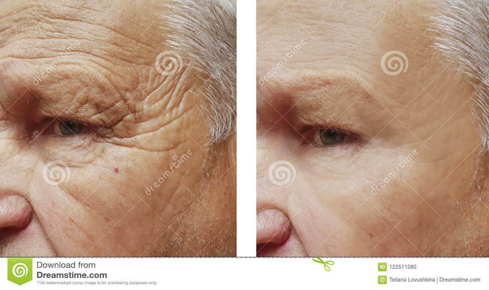 Twarzy starszych osob mężczyzna cierpliwy czoło marszczy terapii twarz przed i po procedurami