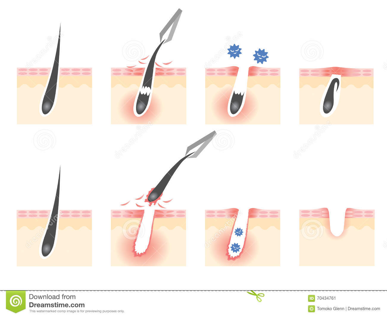 Tweezers Hair Removal Stock Illustration Illustration Of
