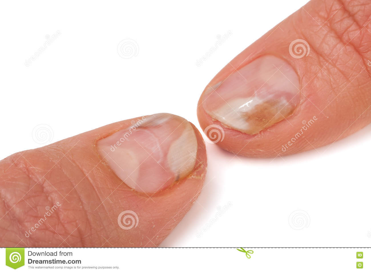 Two Fingers Of The Hand With A Fungus On The Nails Isolated White ...