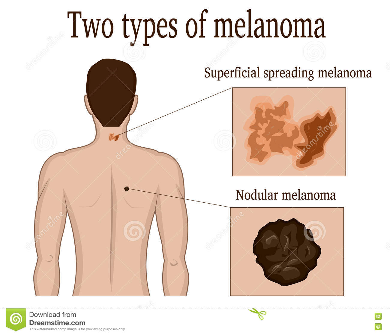 Two Types Of Melanoma Stock Vector Illustration Of Healthcare