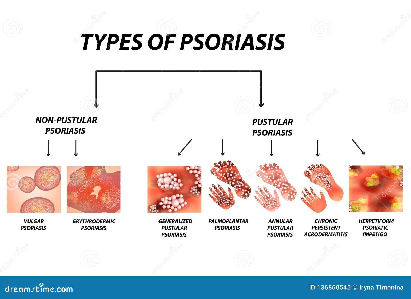 Typ łuszczyca Krostowaty i krostowaty Ordynarny, erythroderma, erythrodermic łuszczyca, wytrwały acrodermatitis