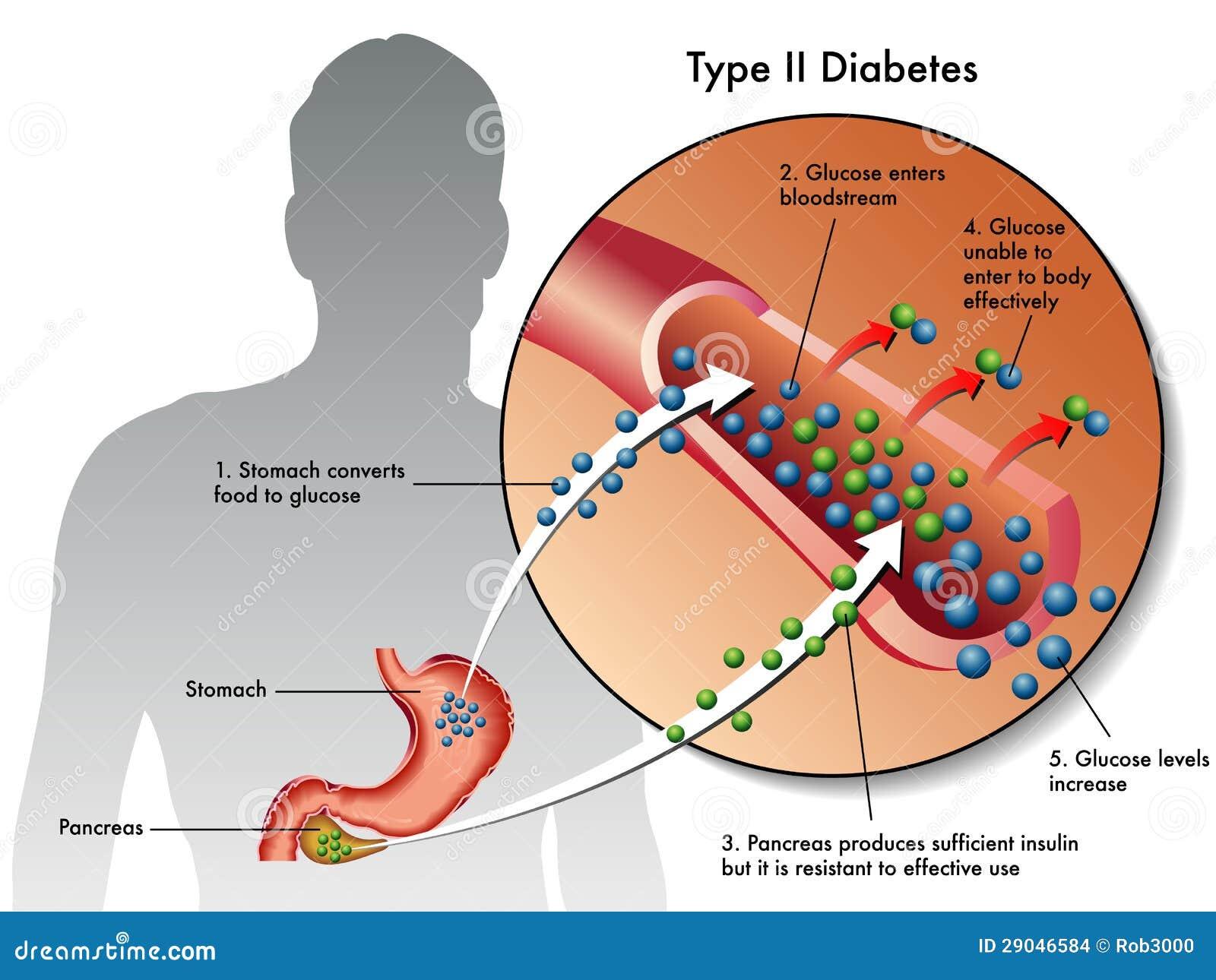 type 2 diabetes stock images - image: 29046584, Skeleton