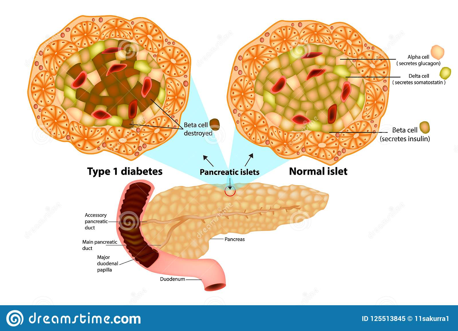 Type 1 Diabetes Beta Cell Destroyed Stock Vector Illustration Of