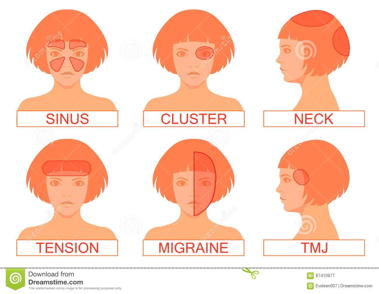Type of headache pain, different head pain illustration.