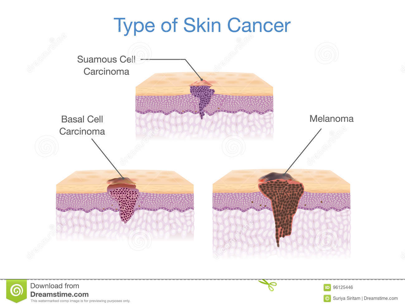 Type of Skin Cancer in 3D vector style.