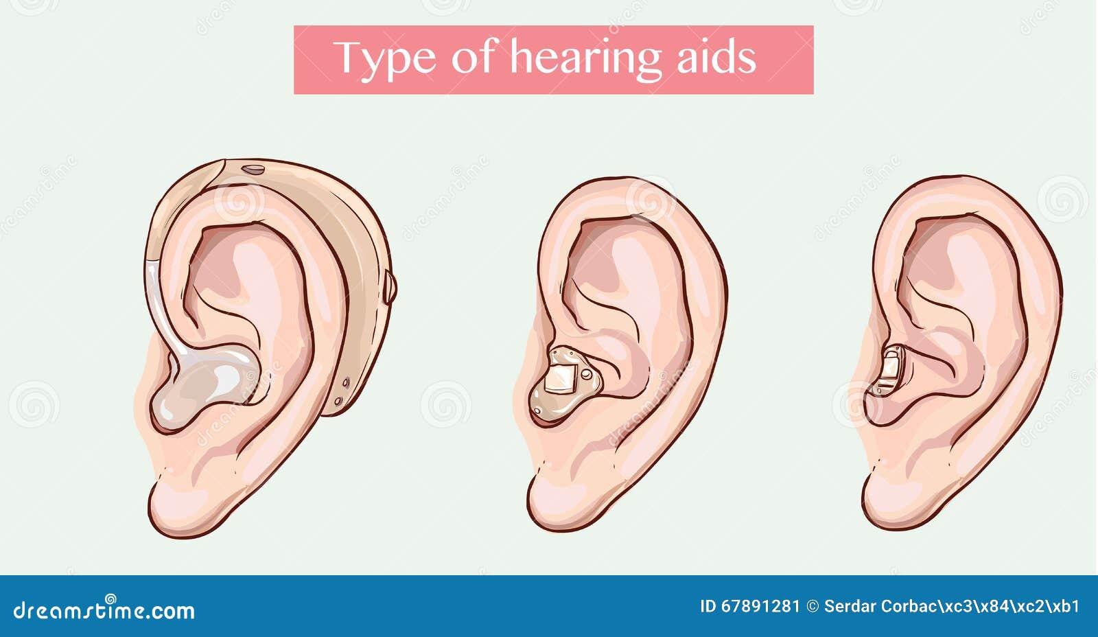 Type van hoorapparaten