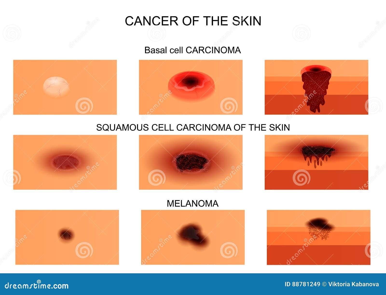 typer av cancer