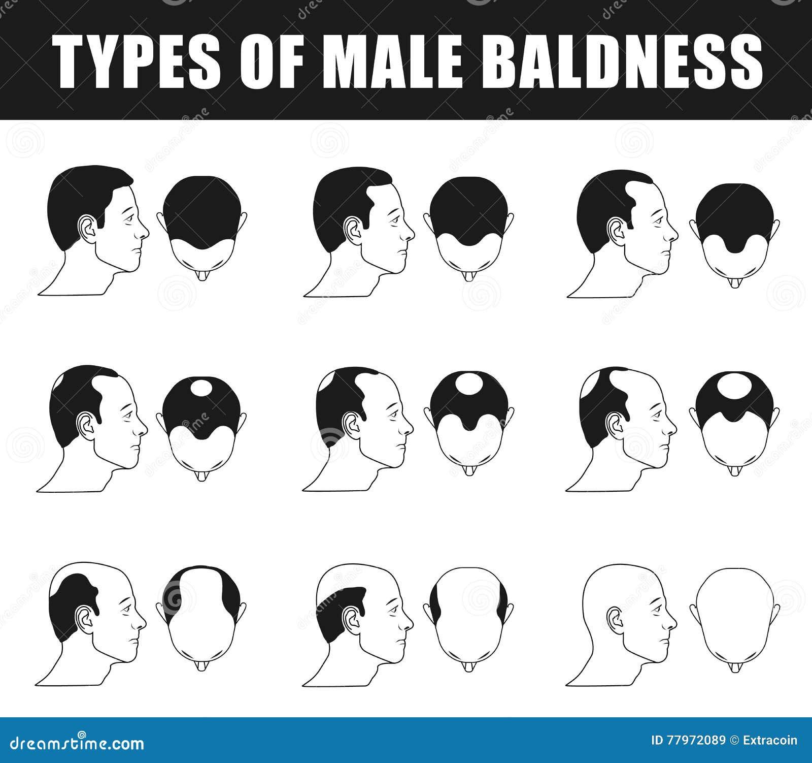 Typer av manlig flintskallighet