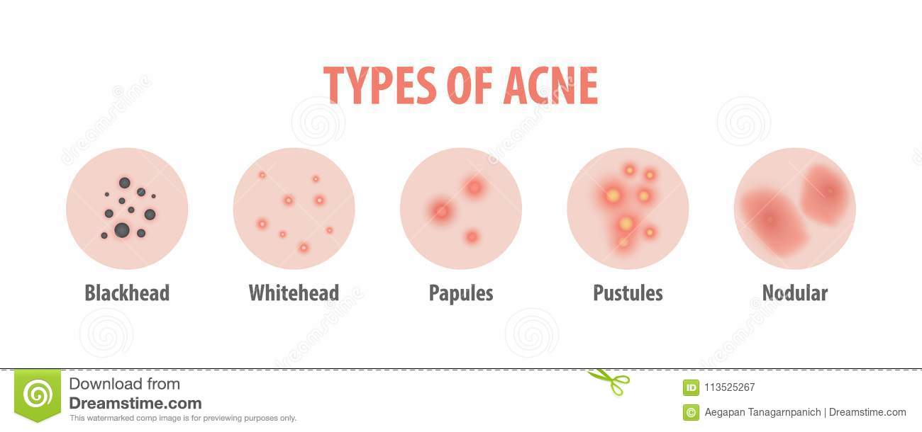 types of acne diagram illustration vector on white background  b stock vector