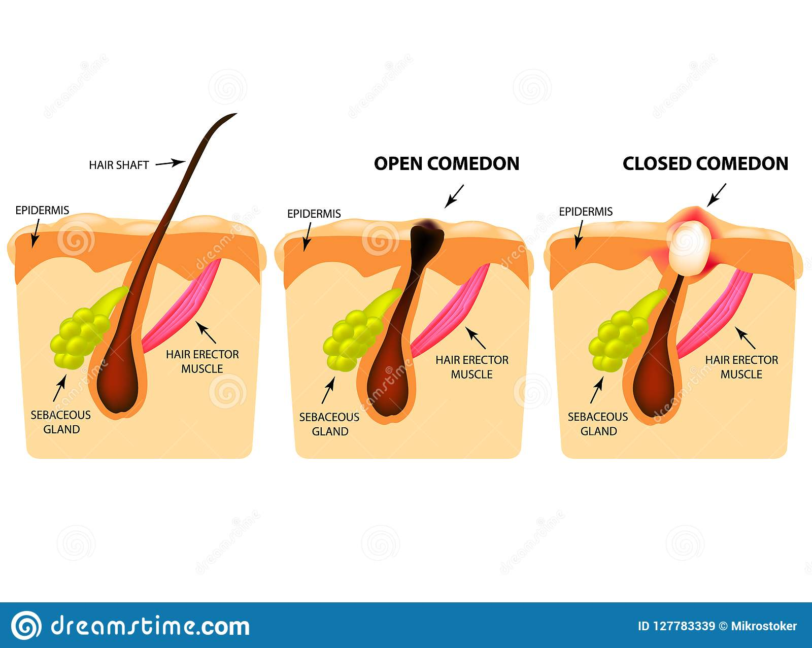 skin structure acne stock illustrations – 206 skin structure acne stock  illustrations, vectors & clipart - dreamstime
