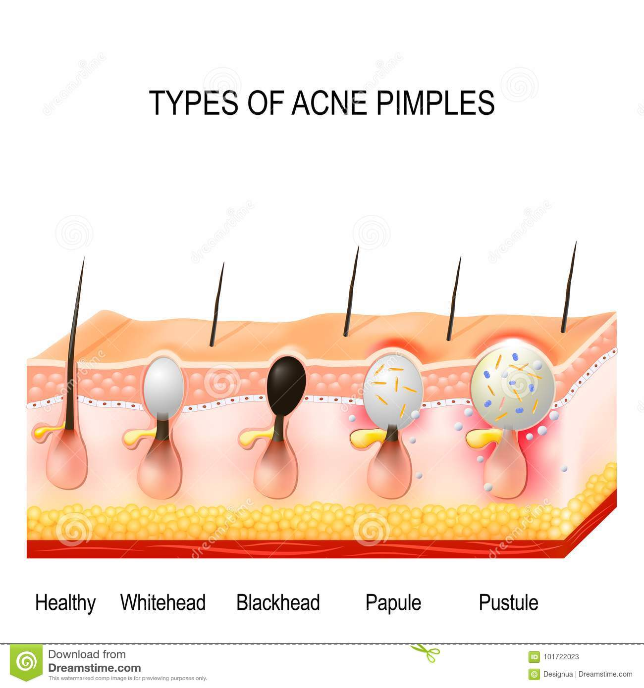 Types of acne pimples stock vector  Illustration of