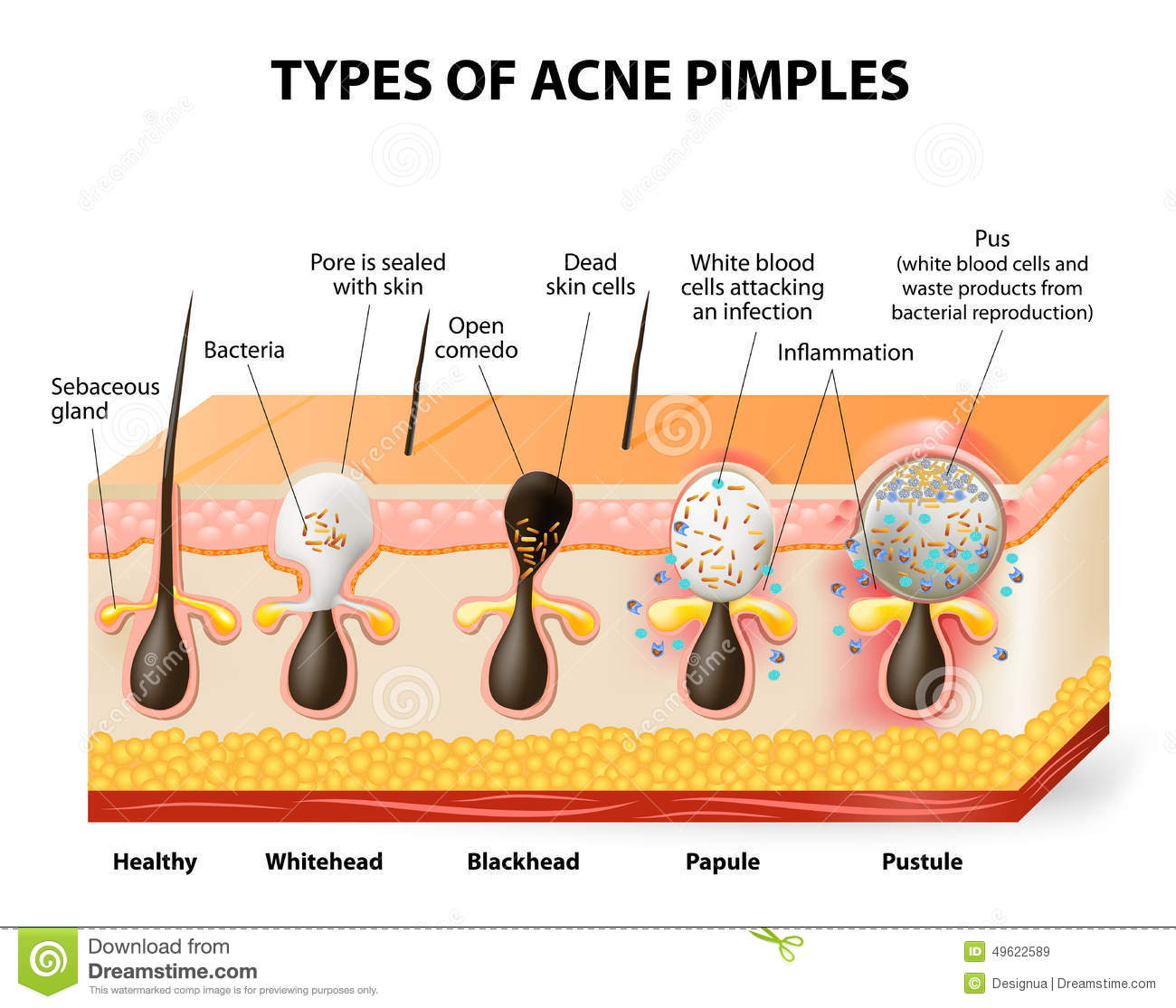 Types Of Acne And Pimples  Vector Illustration Cartoon Vector