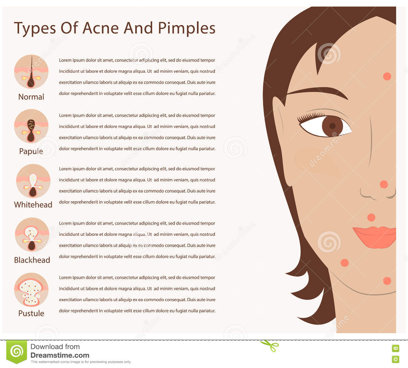 types of acne pimples stock vector - image: 49622589, Cephalic Vein
