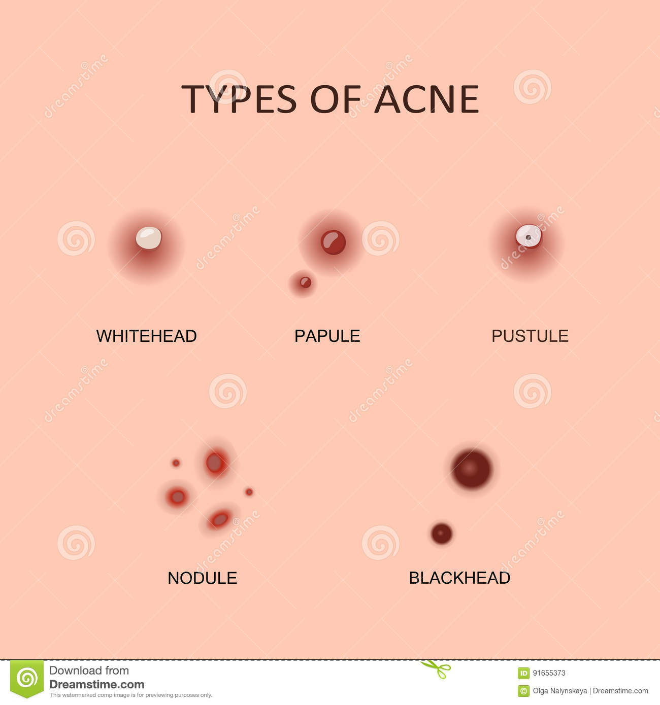 types of acne and pimples stock vector - image: 91655373, Human body