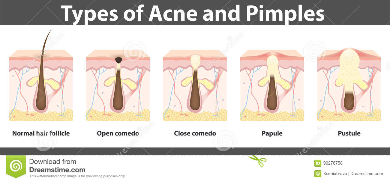 Types Of Acne Structure Of Pimple Vector Illustration Stock Vector