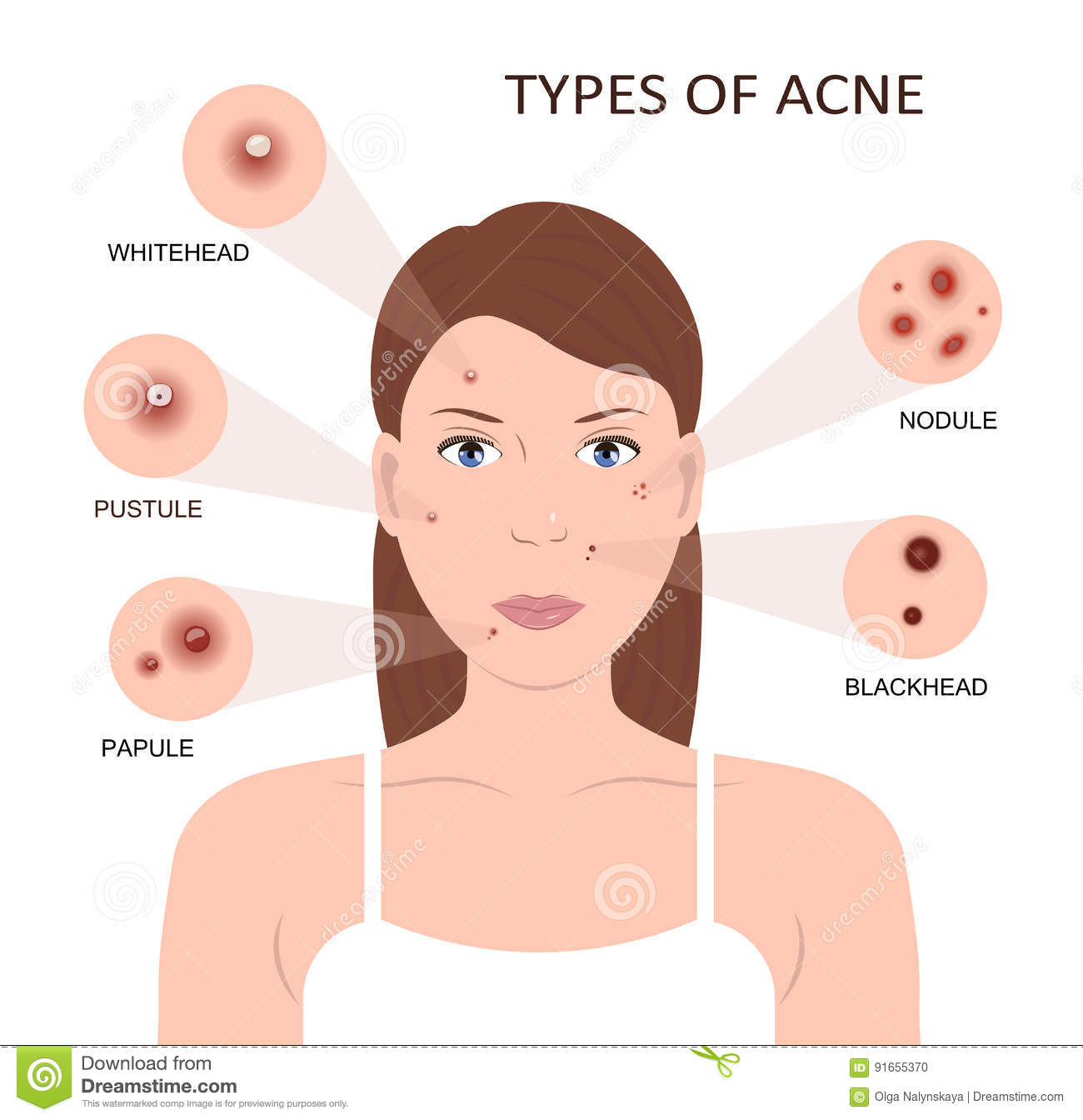 How To Get Rid Of Fat Types Of Acne And Pimples Vector Illustration Cartoon