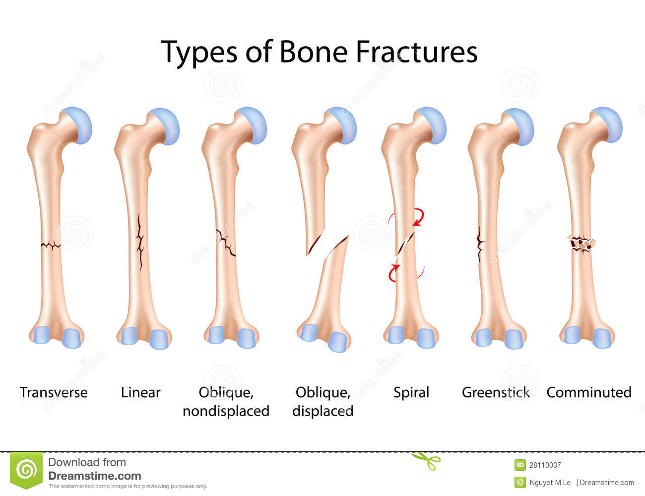 Types of bone fractures stock vector. Illustration of head - 28110037