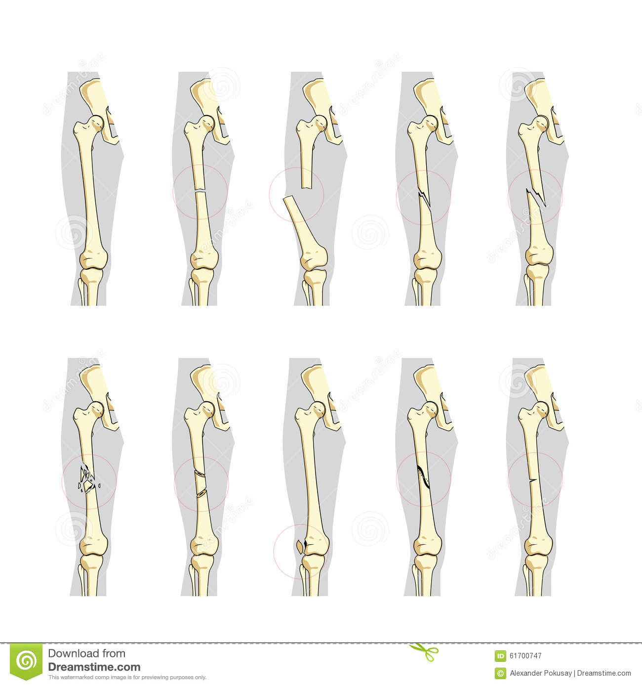 Types Of Bone Fractures Medical Educational Vector Stock Vector