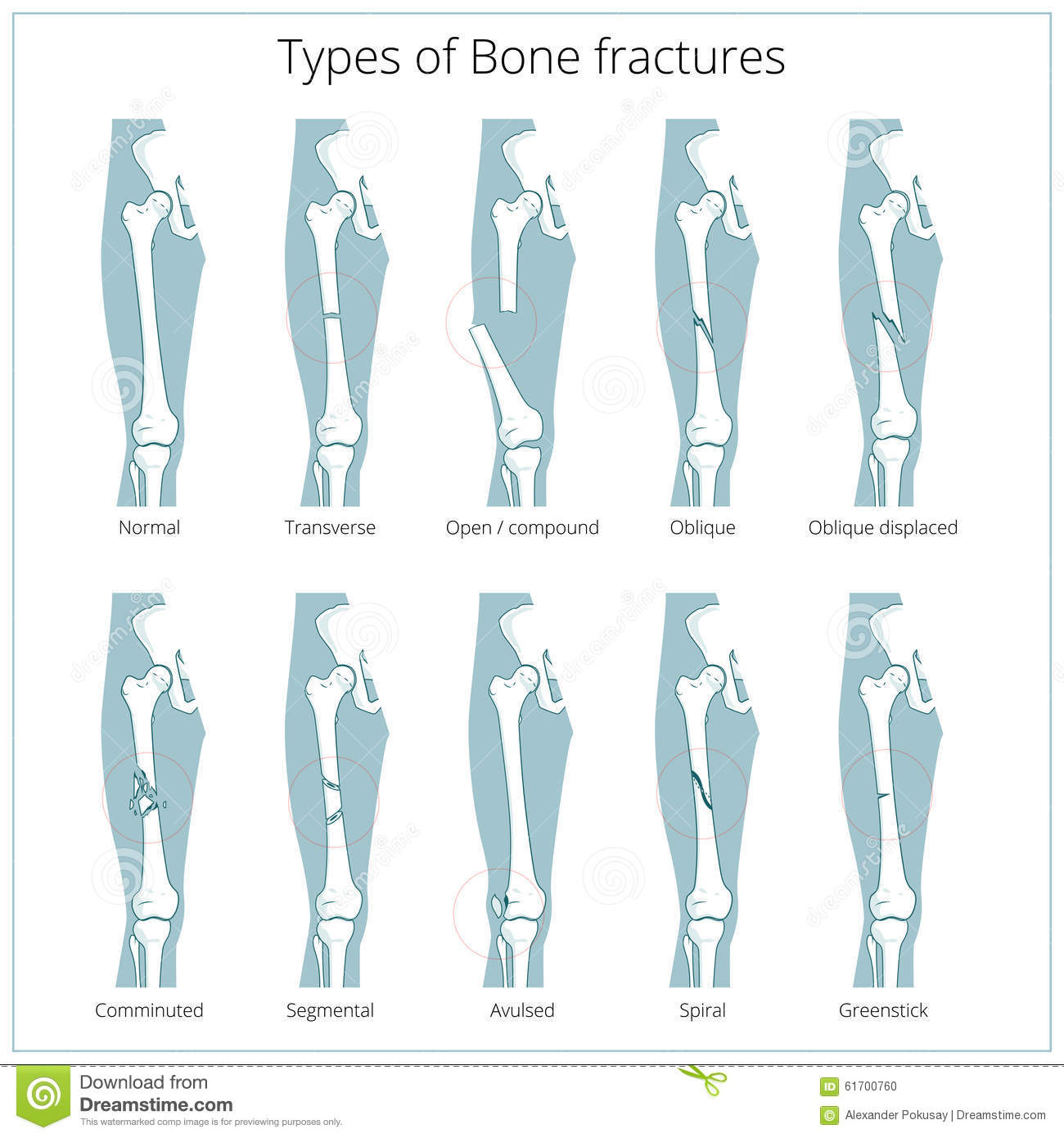 Types Of Bone Fractures Medical Educational Vector Stock Vector ...