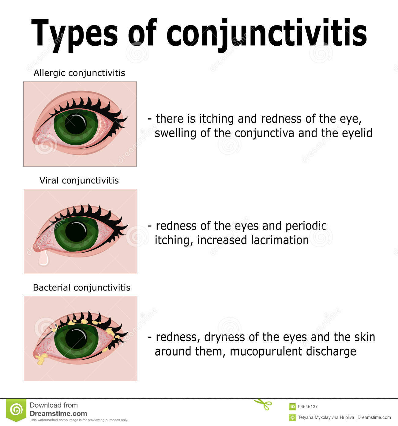 Allergic Conjunctivitis Vs Bacterial Pictures To Pin On: Types Of Conjunctivitis Stock Vector. Illustration Of