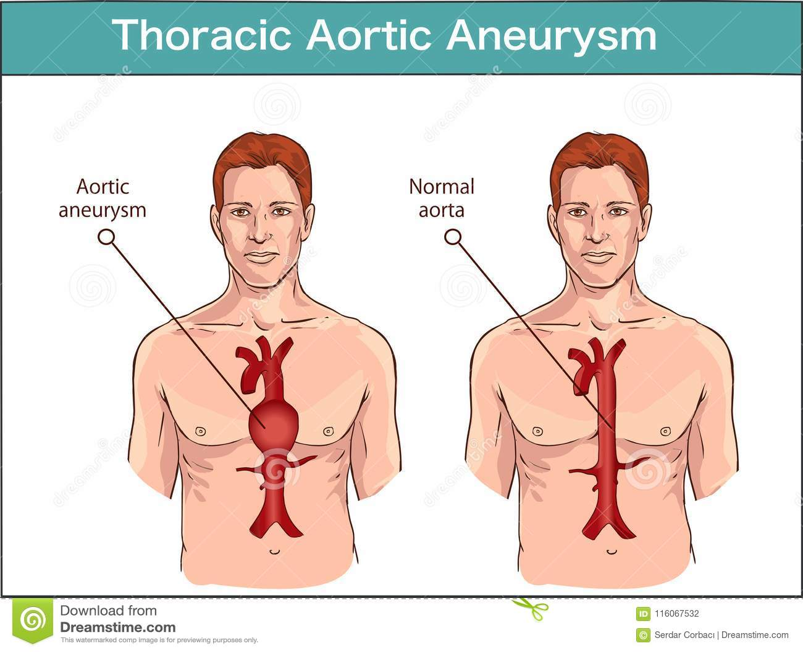 Types D'anévrysme De L'aorte Abdominal Aorte Normale Et Le VE élargi ...