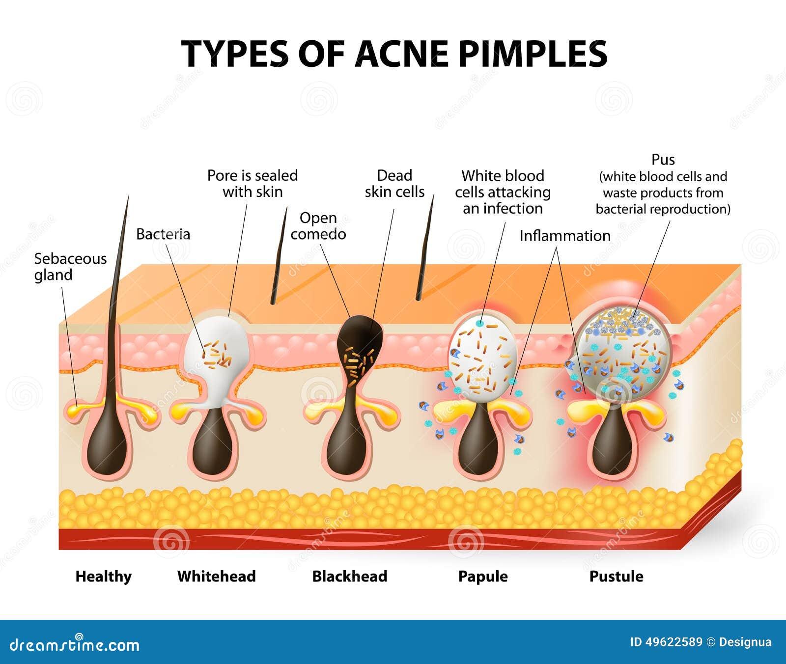 Types de boutons d acné