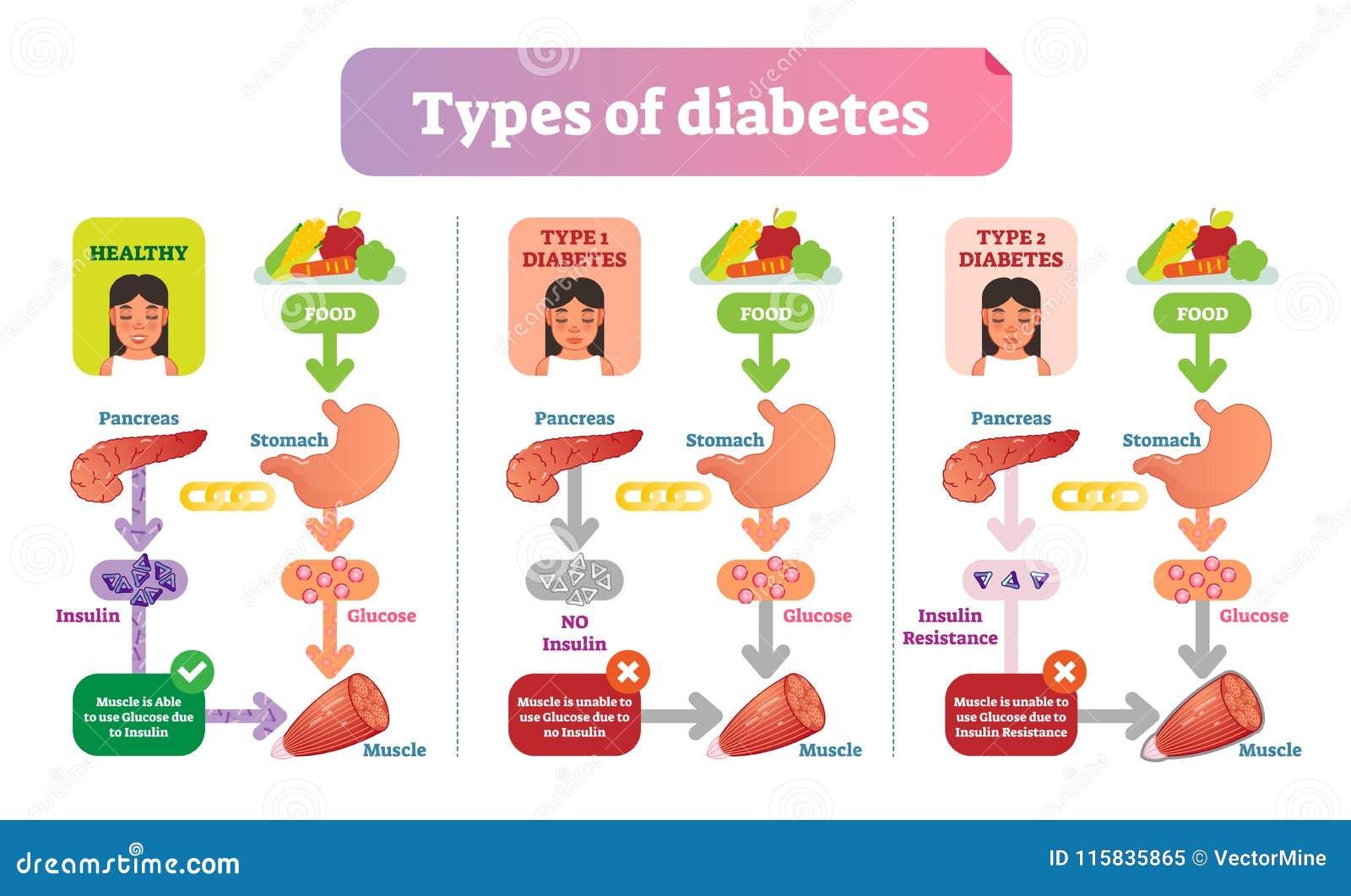 Types of Diabetes simple medical vector illustration scheme. Health care information diagram.