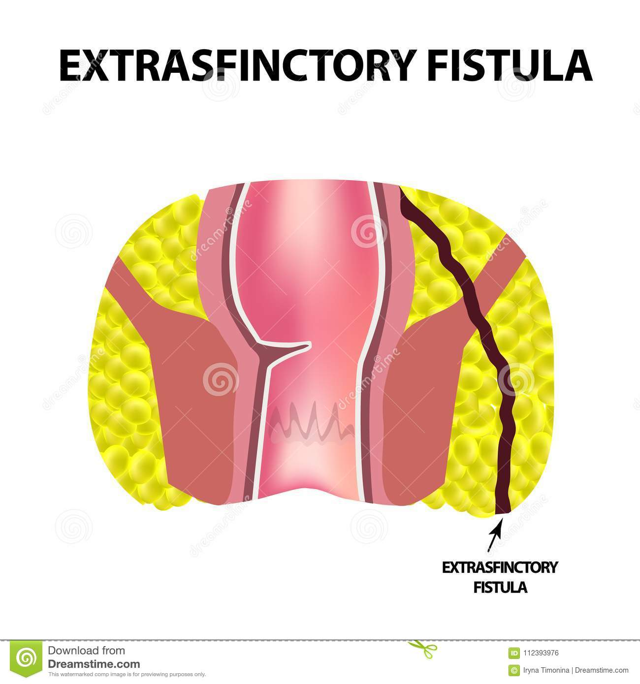 Anal fistulas and swimming