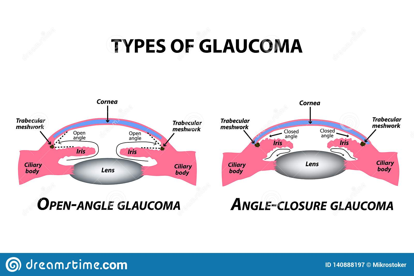 Types of glaucoma. Open-angle and angle-closure glaucoma. The anatomical structure of the eye. Infographics. Vector