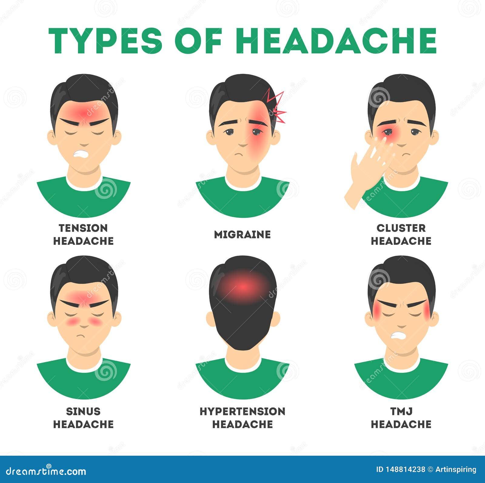 Types Of Headache Set. Stress And Sinus Ache, Migraine ...