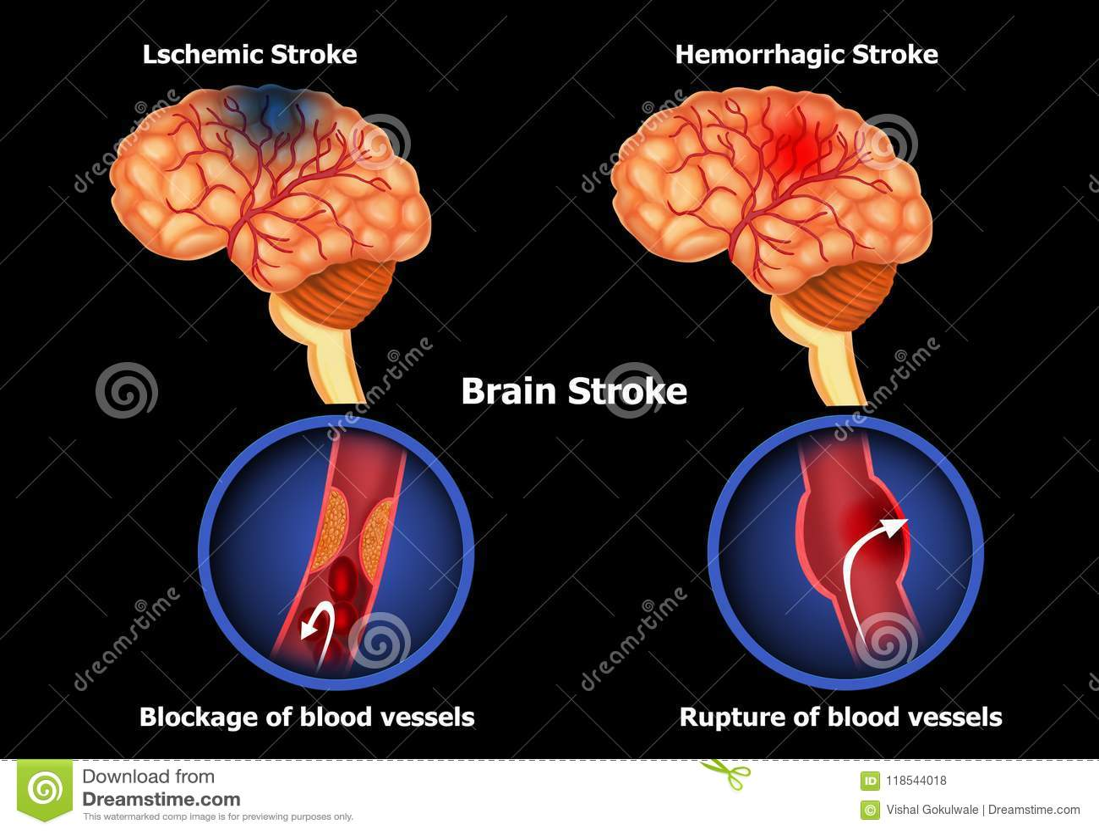 Types Of Human Brain Stroke Stock Illustration Illustration Of