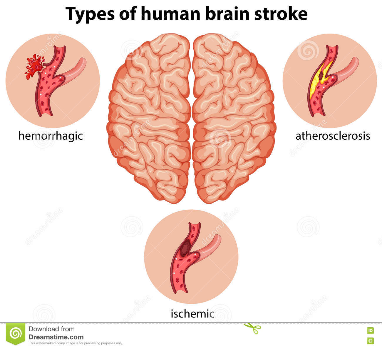 Perfect Anatomy And Physiology Of Stroke Vignette - Physiology Of ...