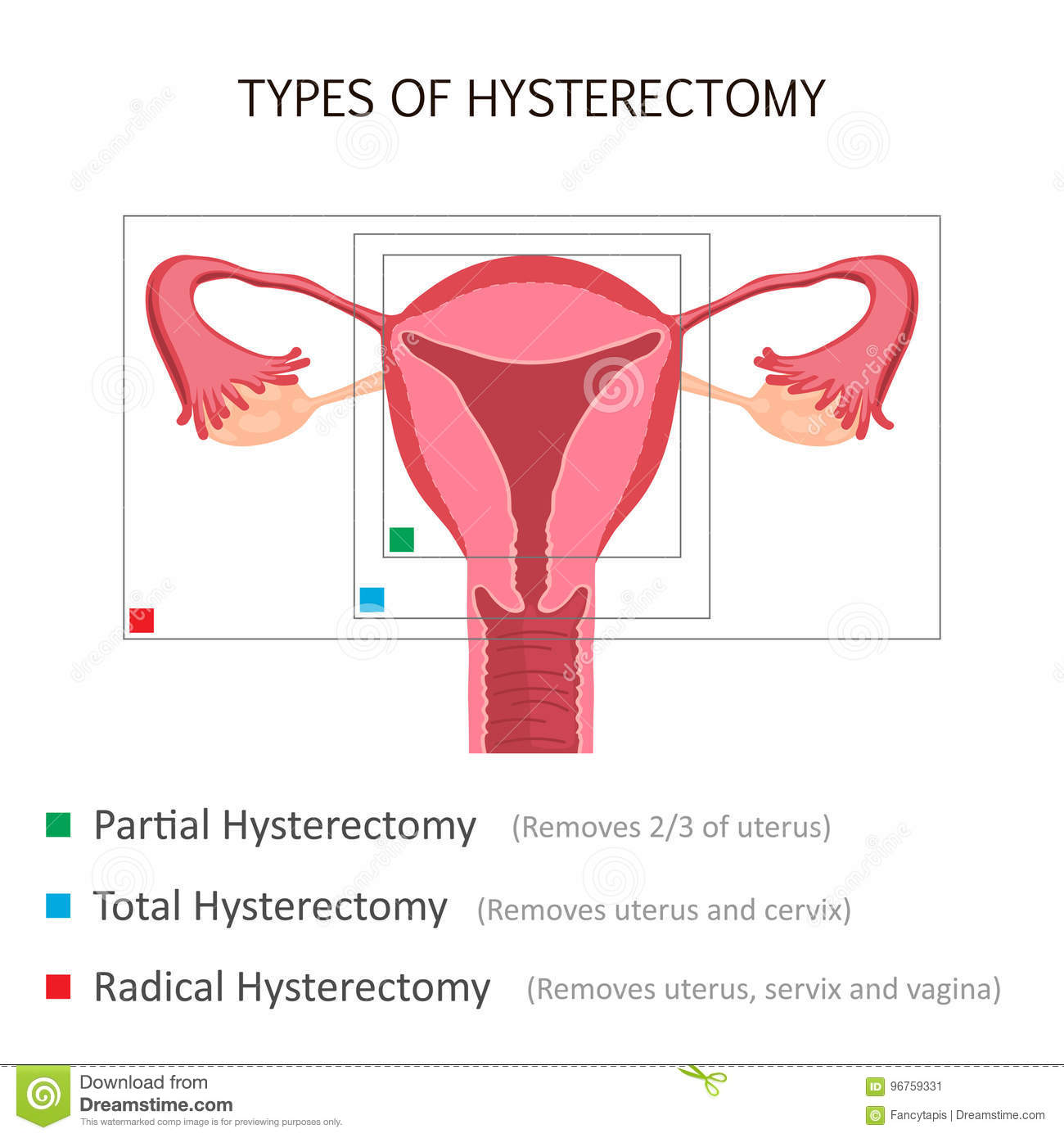 Types Of Hysterectomy Stock Vector  Illustration Of Cervix