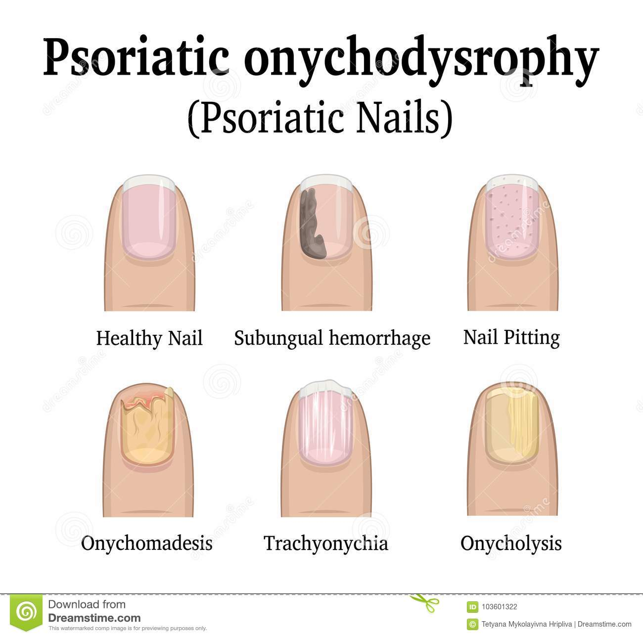Types of nail psoriasis stock vector. Illustration of psoriatic ...