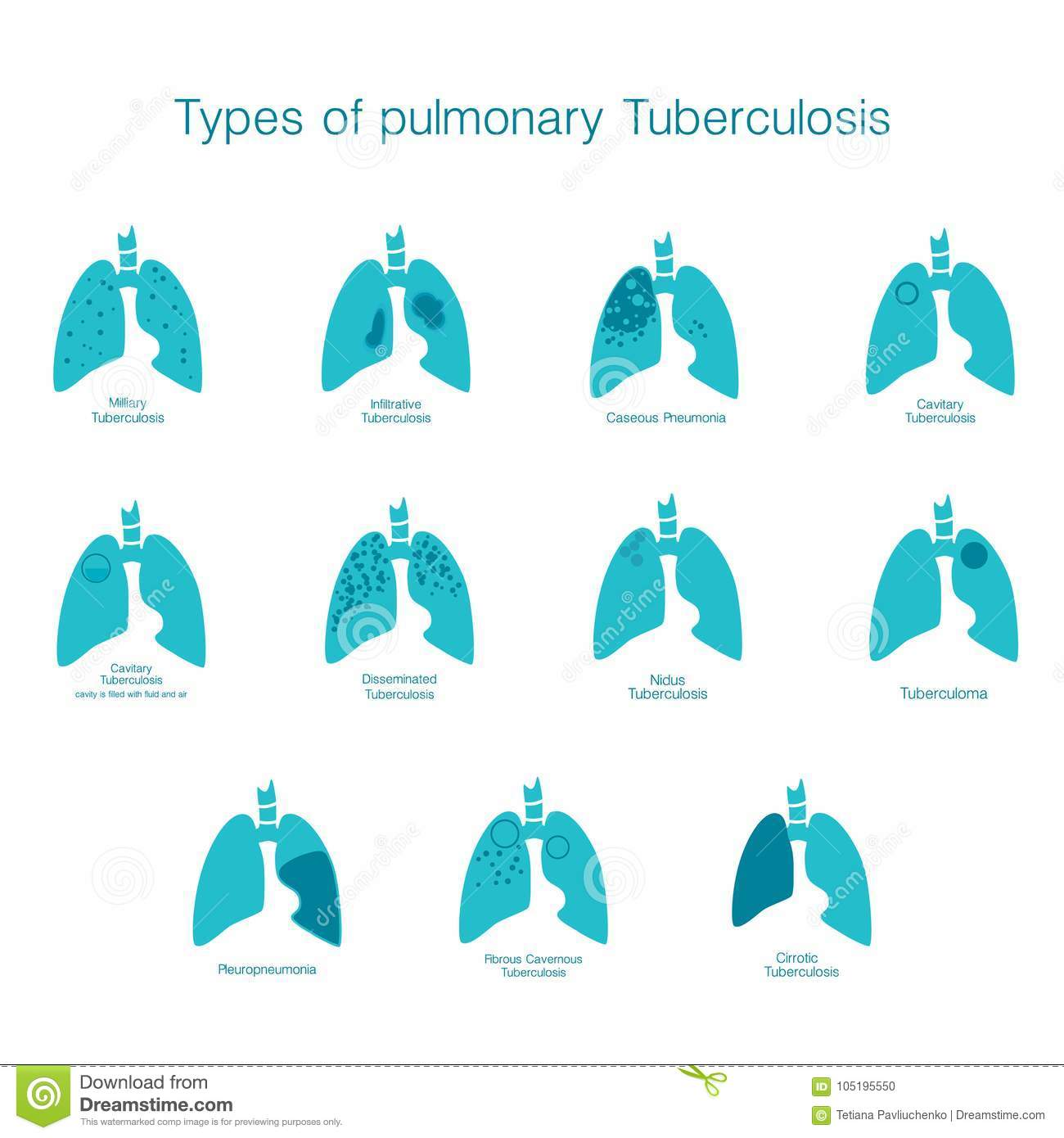 Types Of Tuberculosis Vector Silhouette Medical Illustration Of