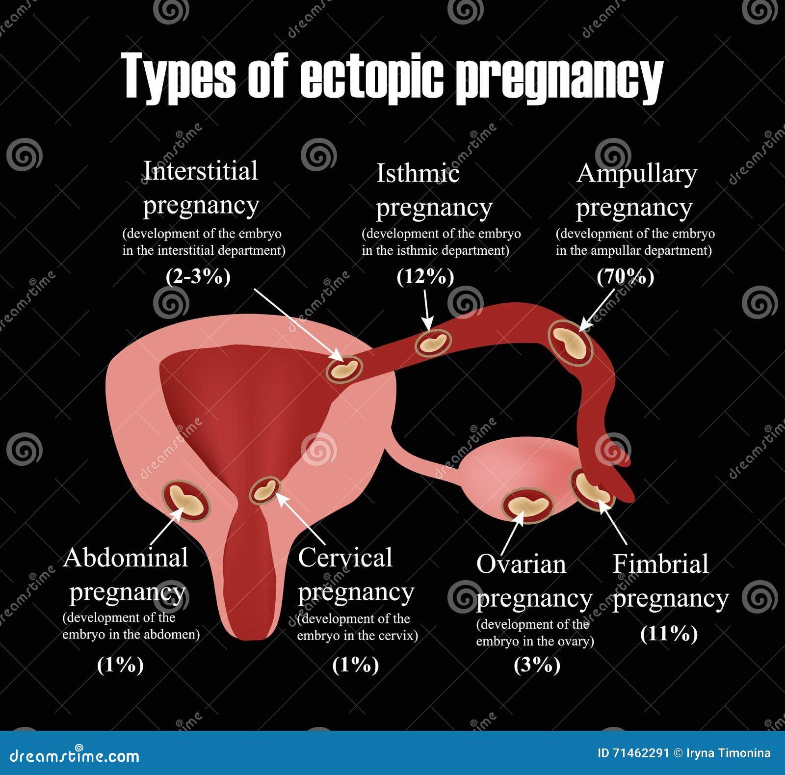 Uterus  U0026 Types Of Fibroids Vector Illustration