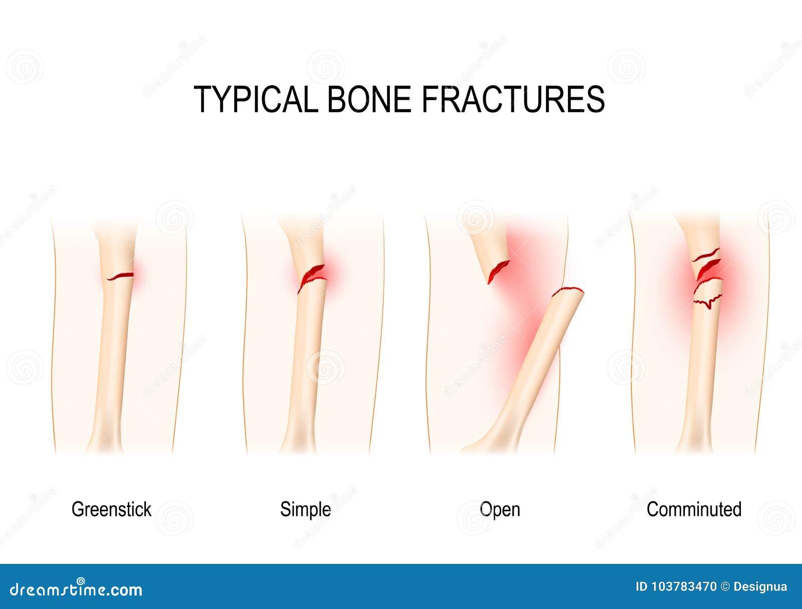 Typische Knochenbrüche Für Medizinische Verwendung Vektor Abbildung ...