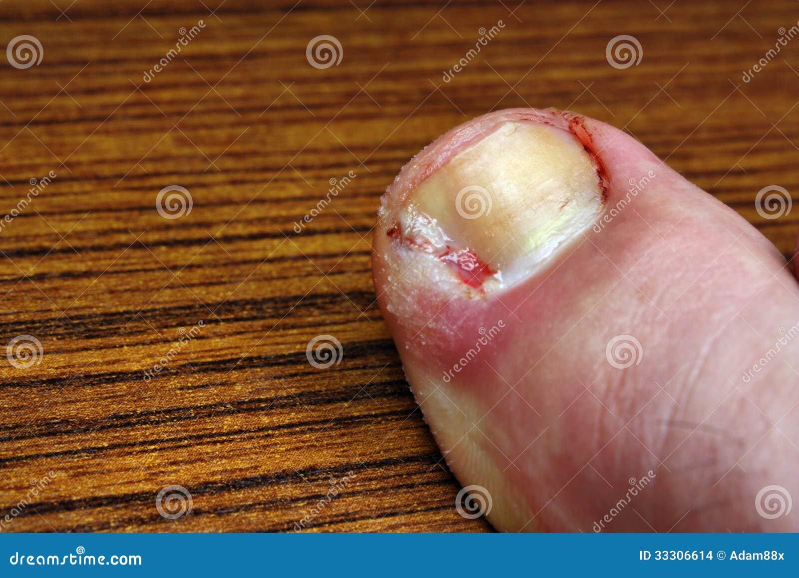 El hongo de las uñas al niño a quien dirigirse