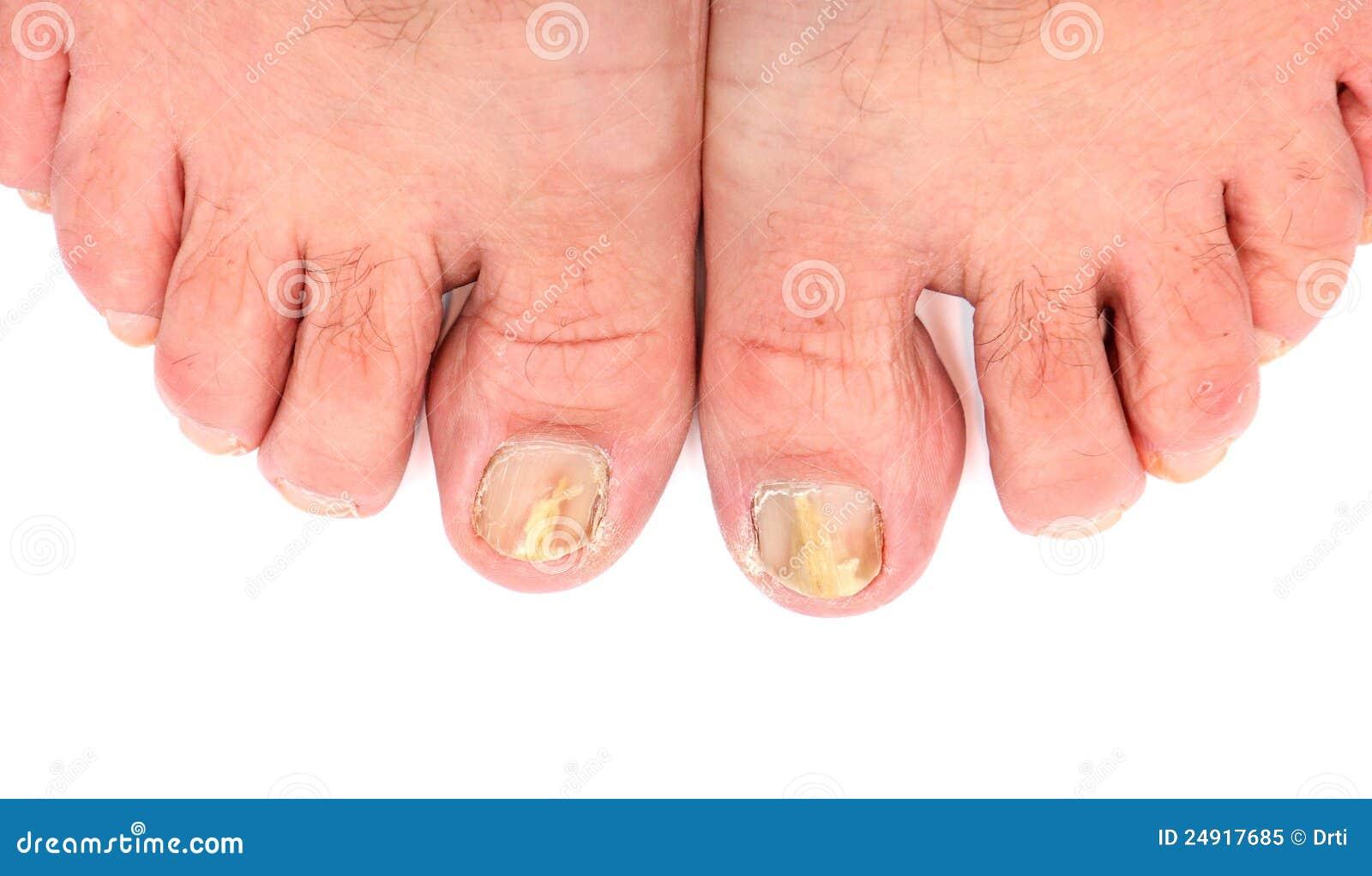 El surgimiento del hongo sobre las uñas