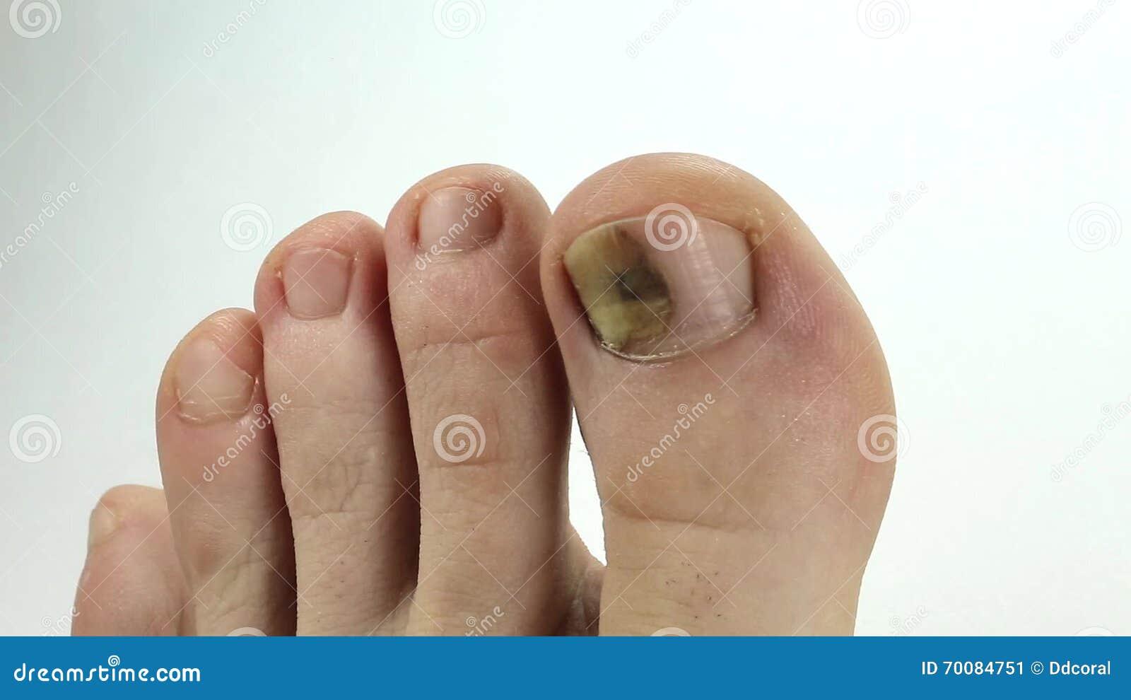Unas enfermas del pie