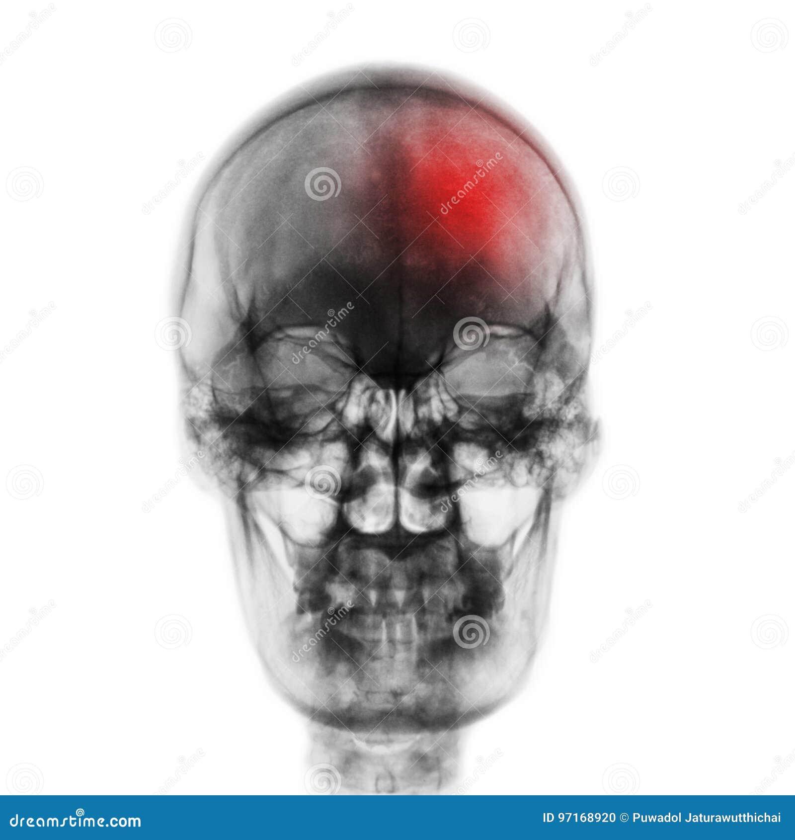 Uderzenie & x28; Cerebrovascular wypadek & x29; Ekranowa promieniowanie rentgenowskie czaszka istota ludzka z czerwonym terenem F