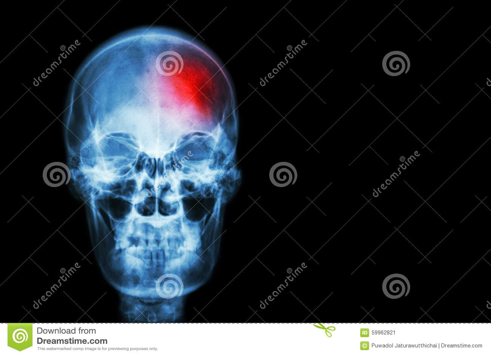 Uderzenie (Cerebrovascular wypadek) ekranowa promieniowanie rentgenowskie czaszka istota ludzka z czerwonym terenem Medycznym, na