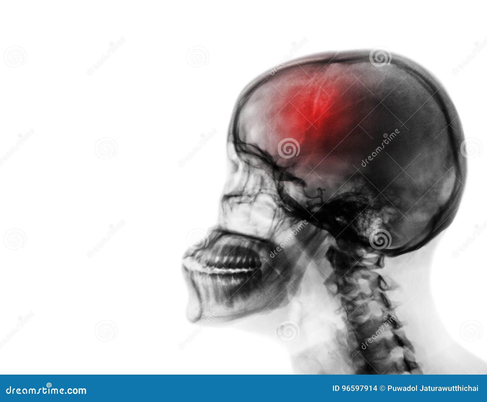 Uderzenie cerebrovascular wypadek Ekranowy promieniowanie rentgenowskie ludzka czaszka i karkowy kręgosłup