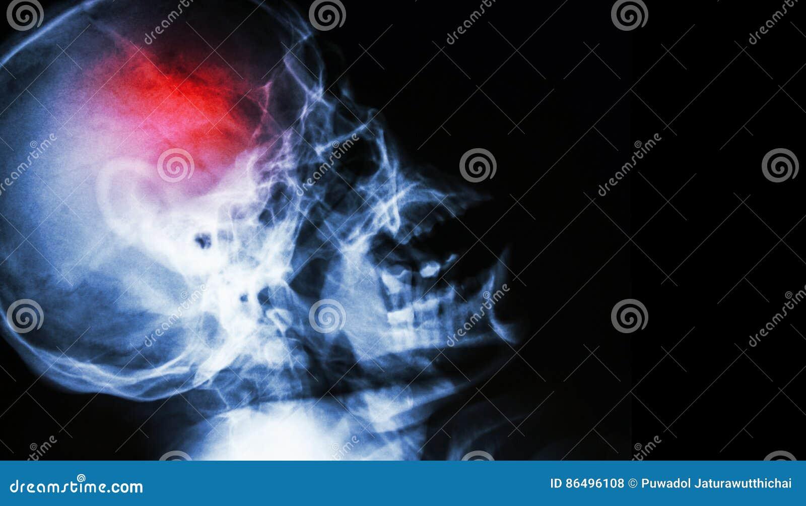 Uderzenie ekranowy promieniowanie rentgenowskie ludzkiej czaszki lateral widok z uderzeniem pusty teren przy prawą stroną