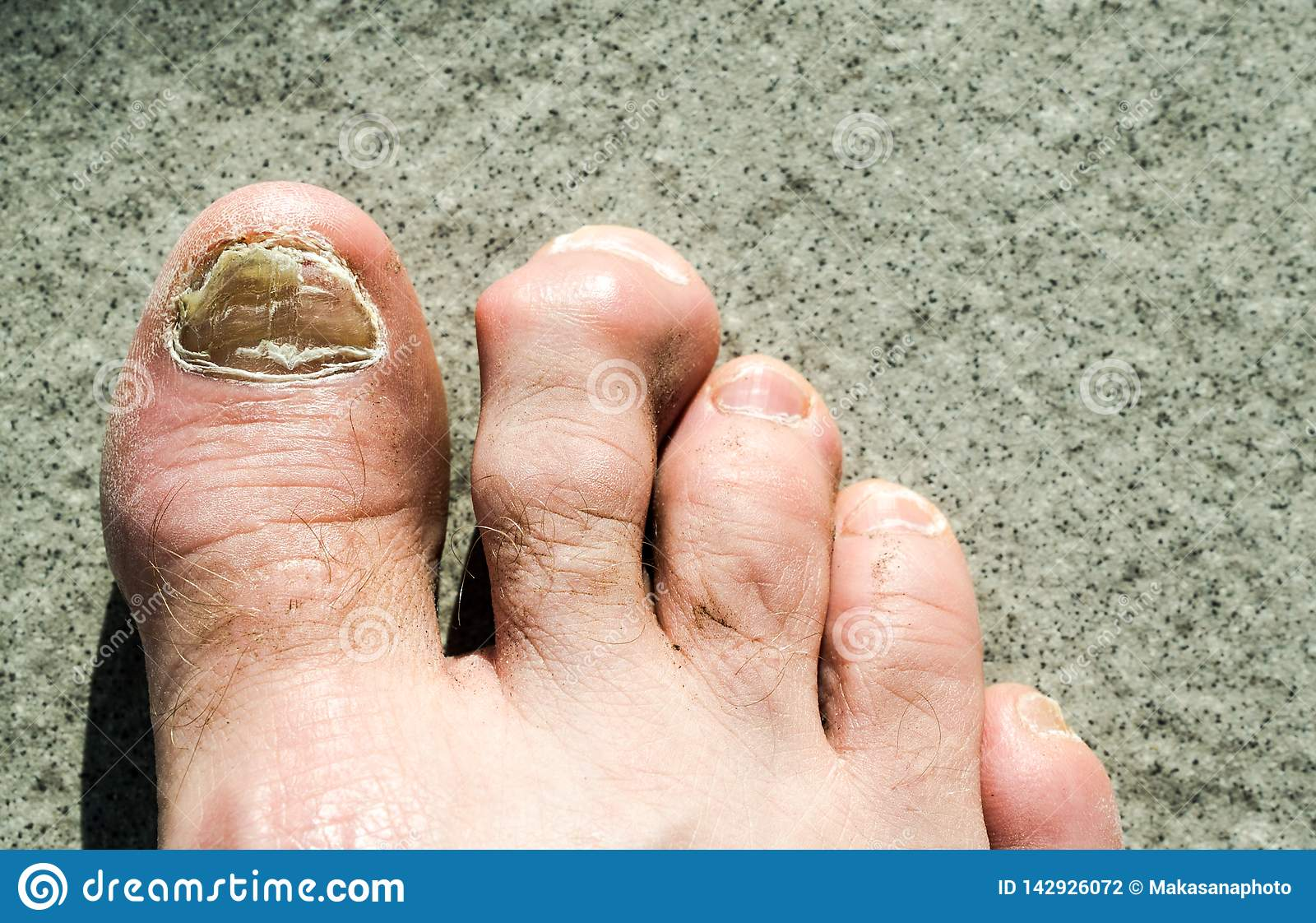 30bd91963 Ugly Feet Stock Images - Download 539 Royalty Free Photos