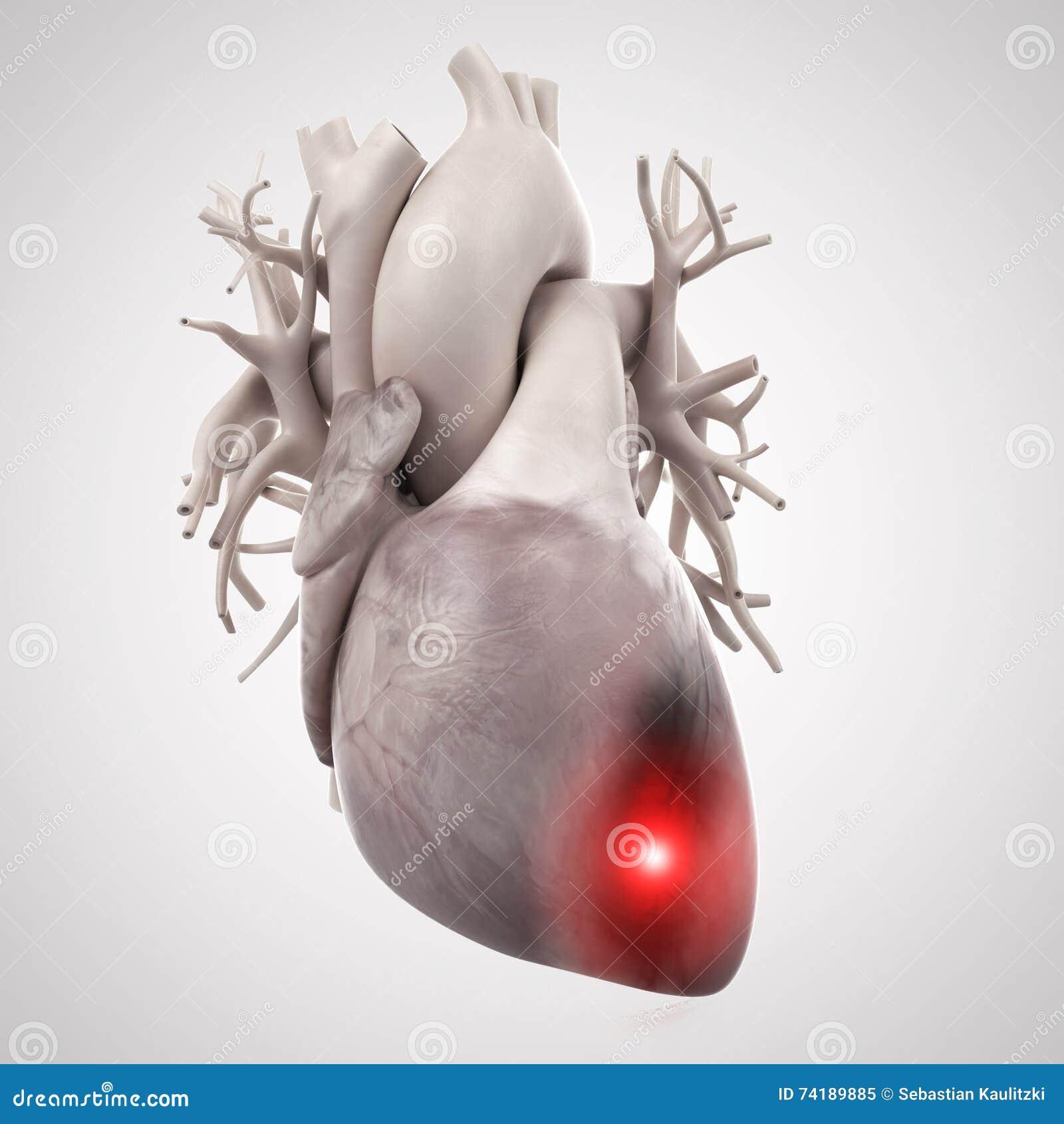 Um cardíaco de ataque