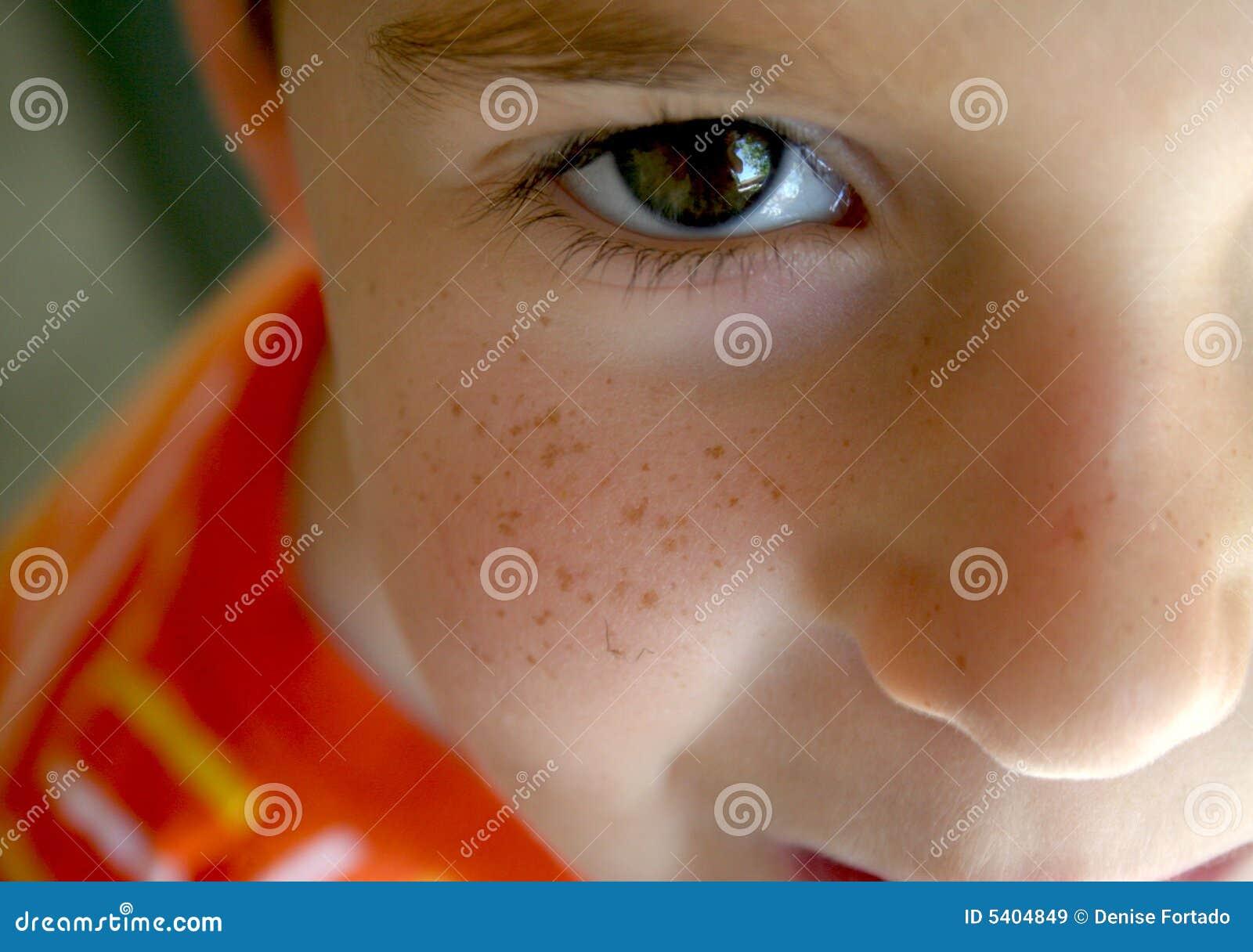 Um freckle enfrentou o menino
