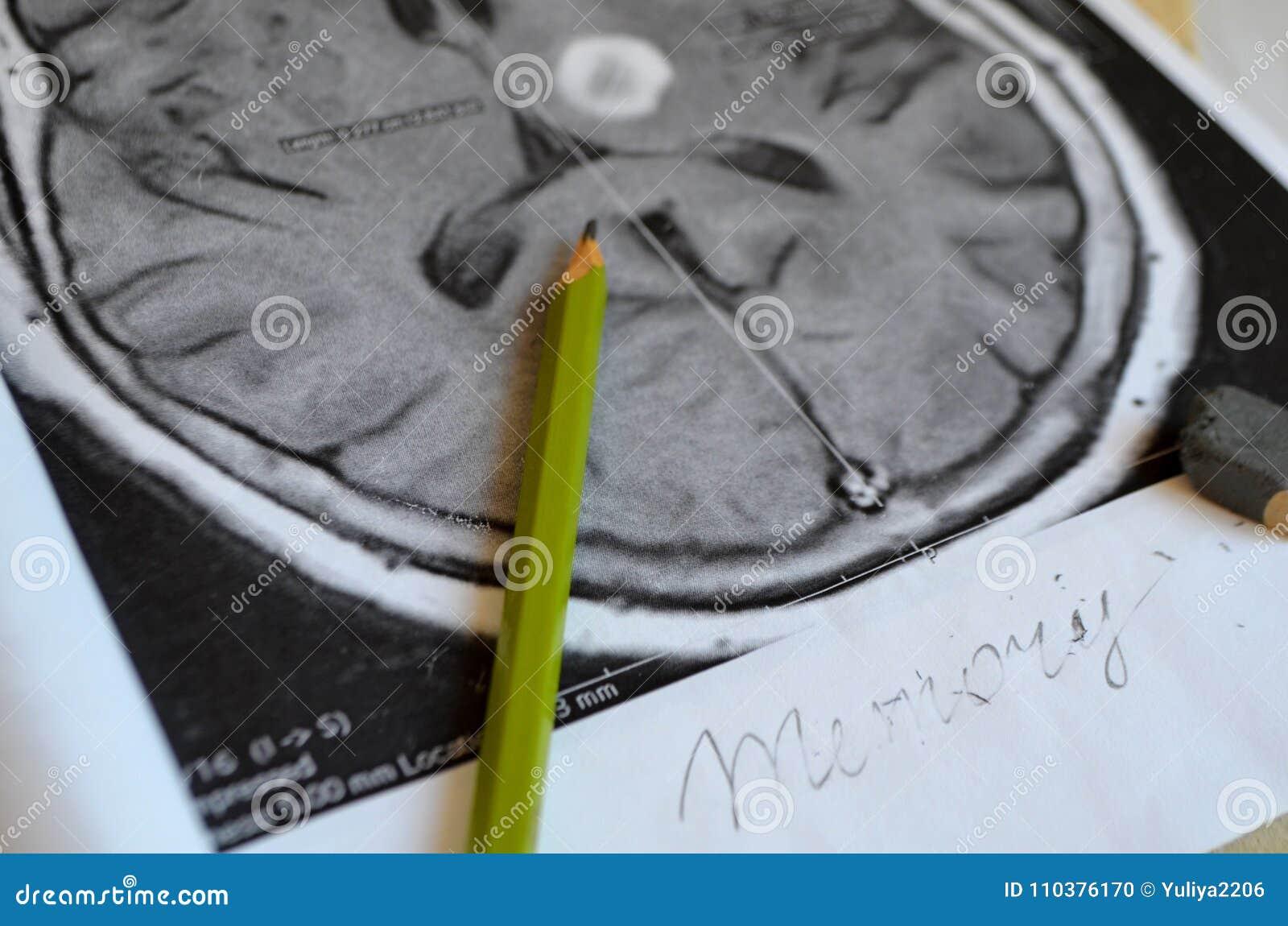 Uma imagem de um curso Doença e doença da demência como uma perda de função e de memórias do cérebro