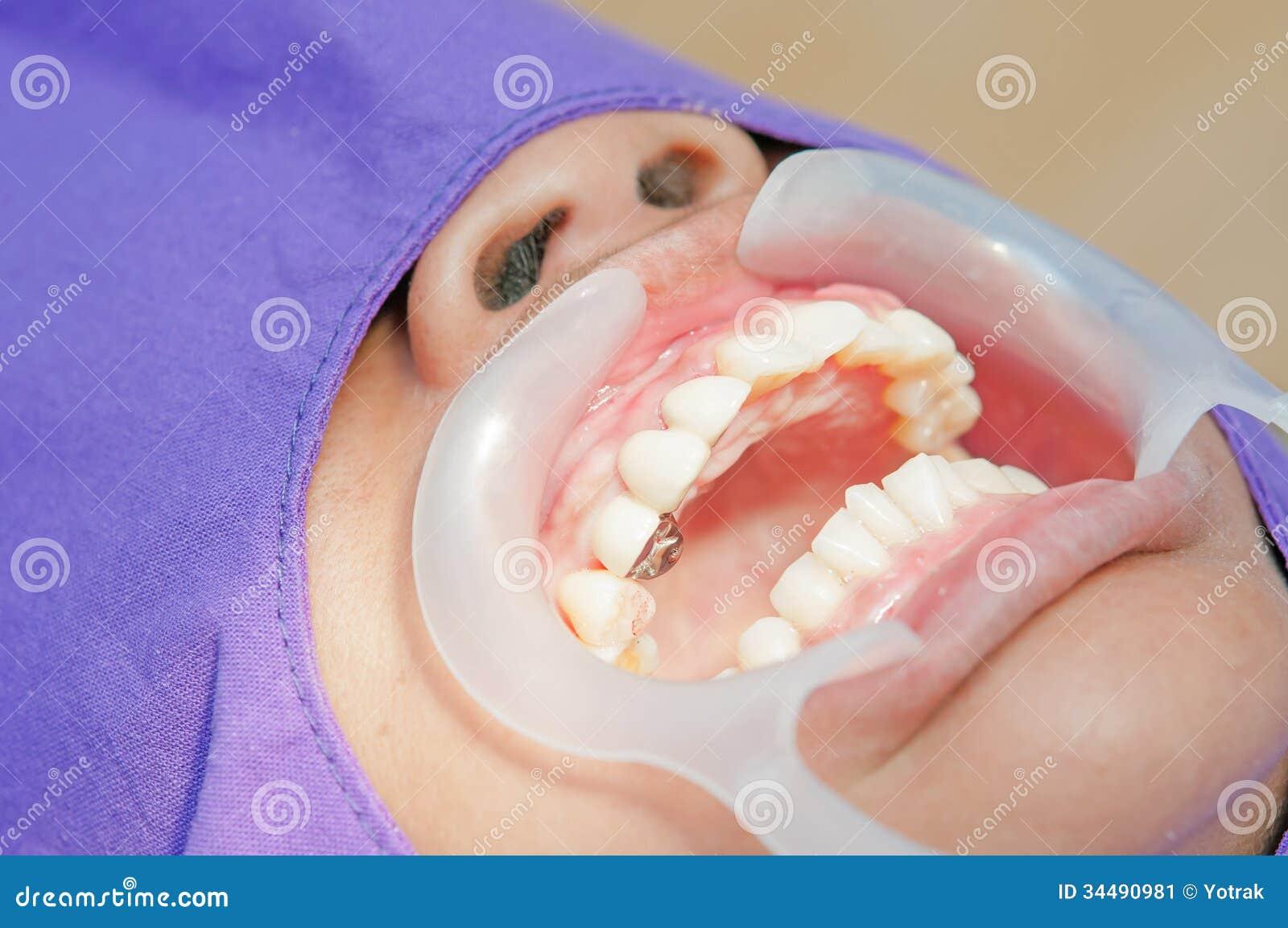 Technicien dentaire plaçant le dentier partiel fixe (le pont dentaire